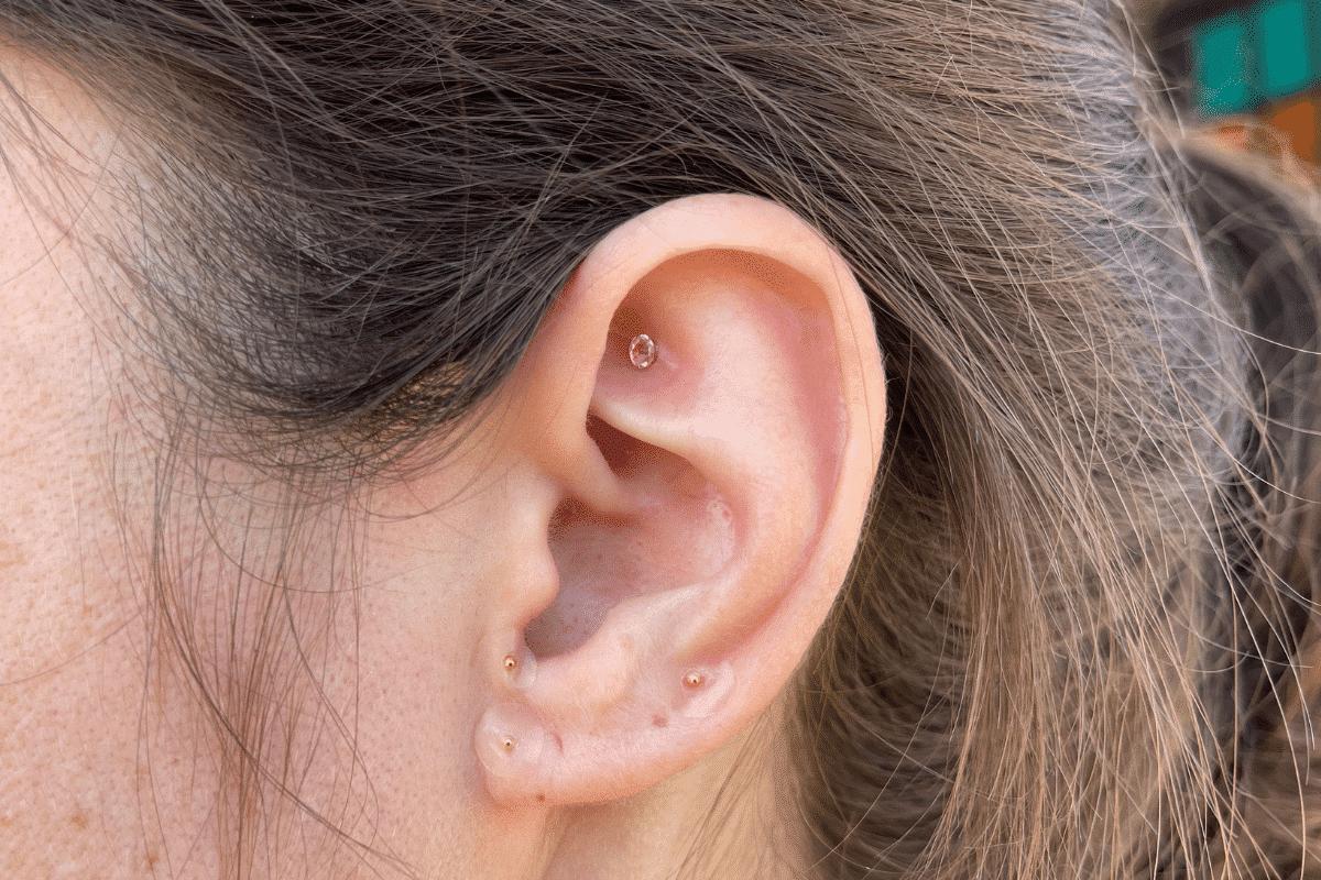 Ear Seeds - SLO